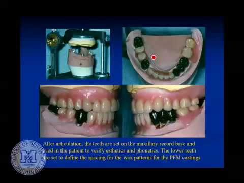 DENT 718: Partial denture attachments thumbnail