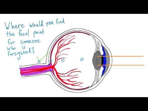 Farsightedness thumbnail