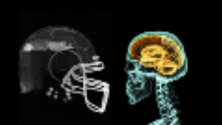 What Helmet Sensors Really Tell Us About Hits and Brain Injuries