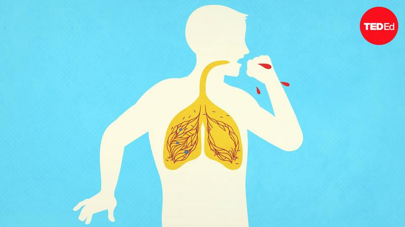 What makes TB the world's most infectious killer? thumbnail