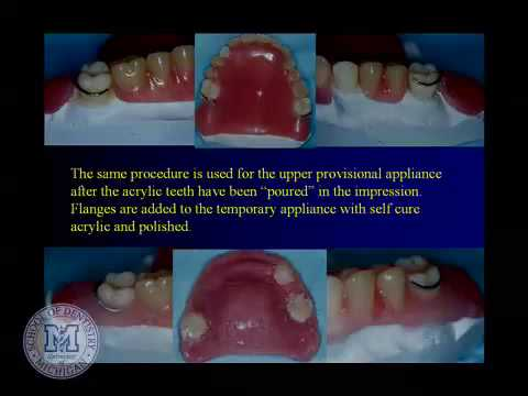 DENT 718: Repairing complete and partial dentures thumbnail