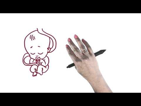 Prenatal exposure thumbnail