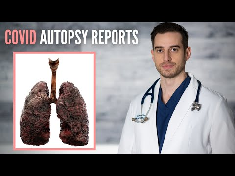 12 COVID Autopsy Cases Reveal the TRUTH How COVID Patients Dying - Doctor Explains thumbnail